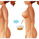 Benefits Of Breast Fat Transfer