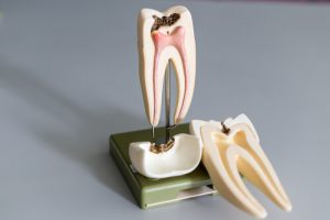root canal tooth hurts with pressure