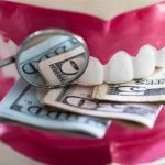 Dental Checkup Cost: A Wise Choice To Spend Money For Oral Health